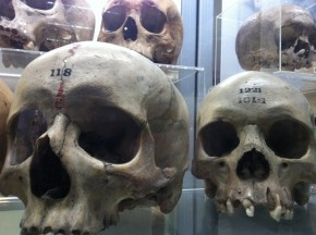 Skulls at the Hunterian Museum